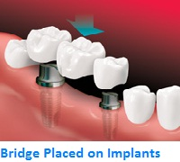 Bridge placed with Implants