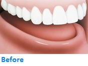 Implant Support Denture