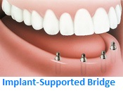 Implant-supported Bridge