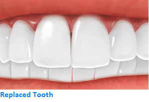 Replaced Tooth