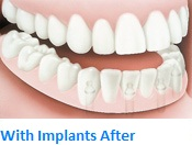 With Implants After
